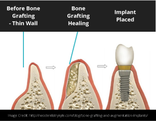 Bone Grafting Dental Implants Puyallup