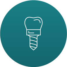 Dental implants treatment puyallup