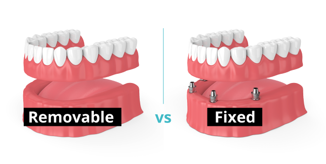 Removable dental implants vs fixed dental implants