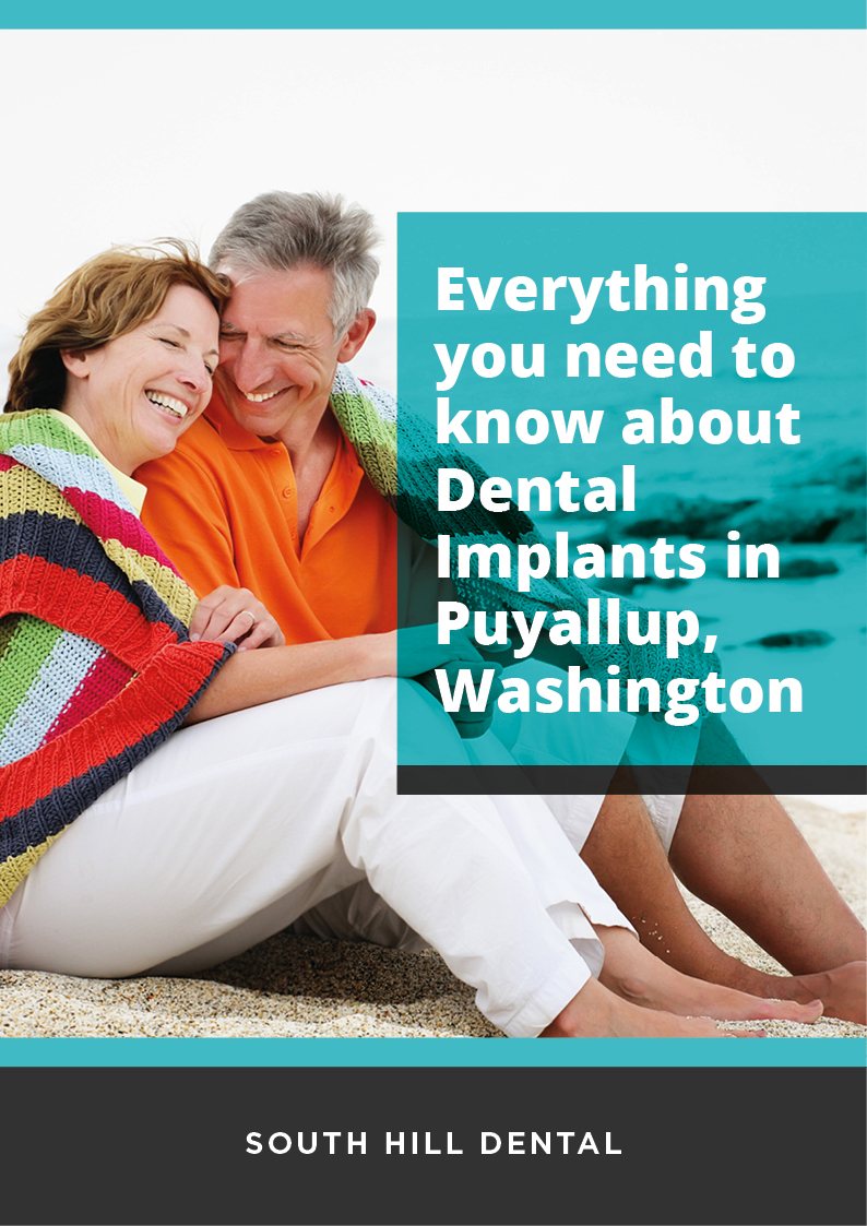 Everything you need to know about Dental Implants in Puyallup, Washington_South Hill Dental