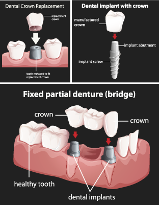 Types of Dental Implants