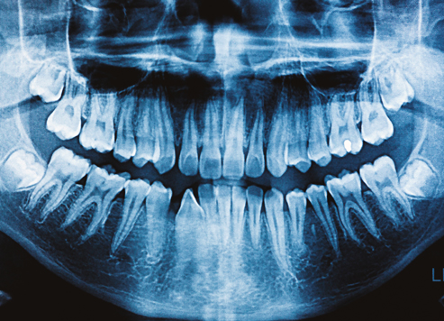 Image_3.-Dental-X-Rays_SHD