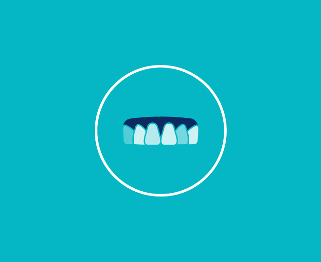 Problems we solve_Images_My teeth are stained
